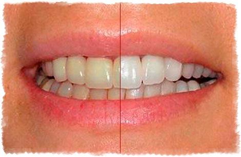 Натуральное отбеливание зубов